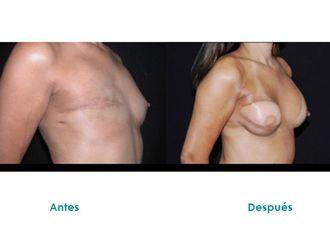 Cirugía reconstructiva - 516092