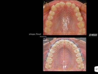 Ortodoncia - 625111