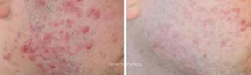 Antes y despues de tratamiento contra el acne