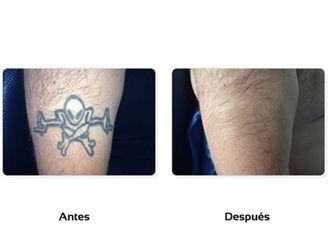 Borrar tatuajes-511107