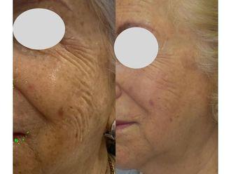 Rejuvenecimiento facial - 742615