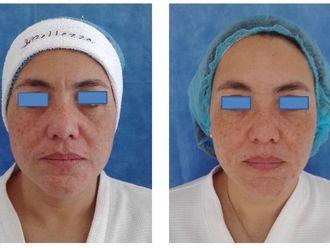 Rejuvenecimiento facial-543078
