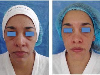 Rejuvenecimiento facial-543079