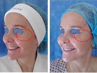 Rejuvenecimiento facial-543081