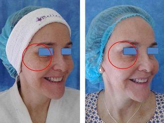 Rejuvenecimiento facial-543082