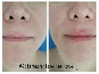 Aumento de labios-642285
