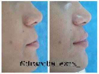 Aumento de labios-642286