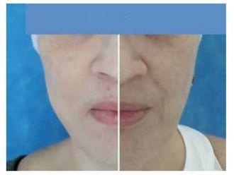 Rejuvenecimiento facial-642289