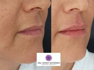 Aumento de labios-790181