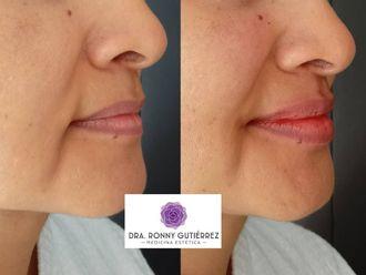 Aumento de labios-790187