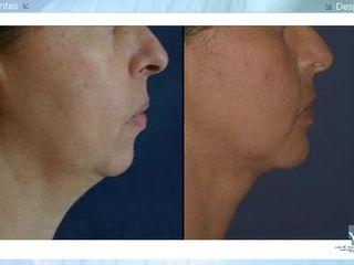 Antes y despues de cirugia de menton