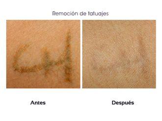 Borrar tatuajes-510429