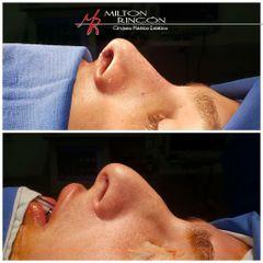 Rinoplastia - Dr. Milton Rincón Carranza