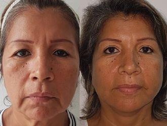 Lifting facial - 623519