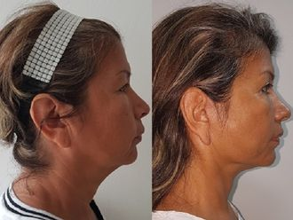 Lifting facial-623520