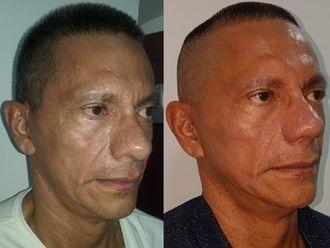 Rejuvenecimiento facial-623526