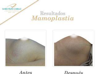 Resultado Mamoplastia Aumento