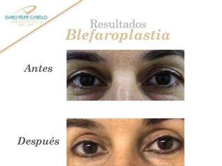 Resultado Blefaroplastia