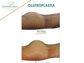 Resultado Gluteoplastia (implantes)