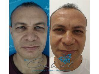 Rejuvenecimiento facial - 647669