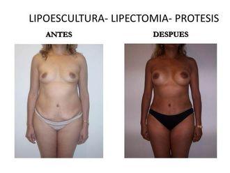 Lipoescultura-547052
