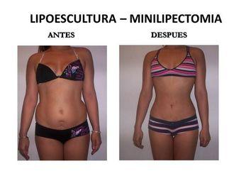 Lipoescultura-573427