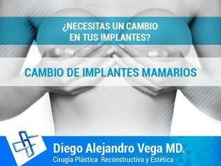 cambio de implantes