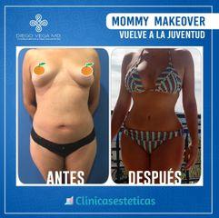 Antes y despues de lipabdominoplastia y mamoplastia