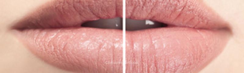 Aumento labios