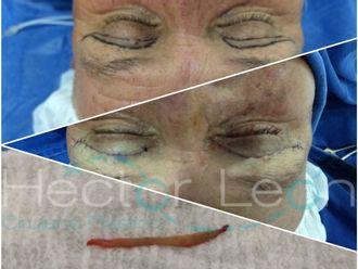 Blefaroplastia-624983