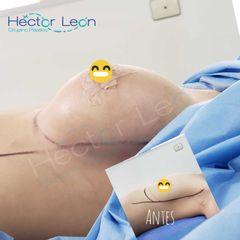 Mamoplastia de aumento - Dr. Héctor Guillermo León Higuera