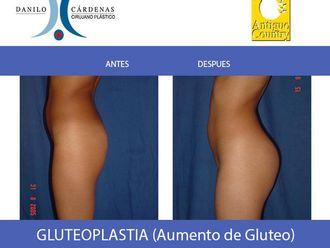 Levantamiento de glúteos - 483873