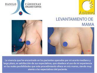 Mamoplastia de aumento-483875