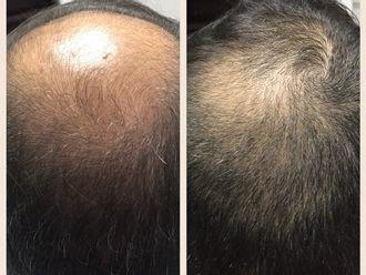 Alopecia - 581698