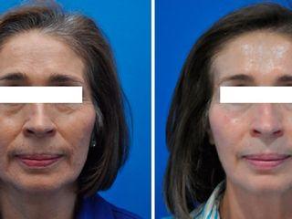 Antes y despues de estiramiento facial no quirurgico
