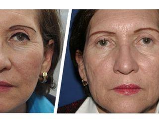 Antes y depsues de laser para mejorar el aspecto de la piel
