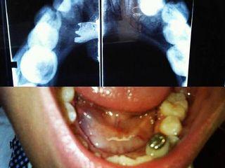 Ránula, Patología oral