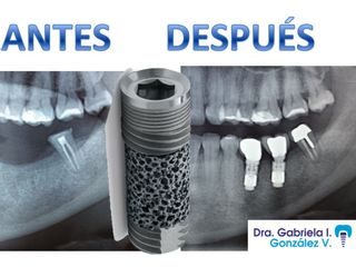 IMPLANTES DENTALES METAL TRABECULADO