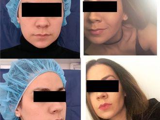 Cirugía maxilofacial - 613077