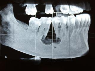 Biopsia de patologías intraorales