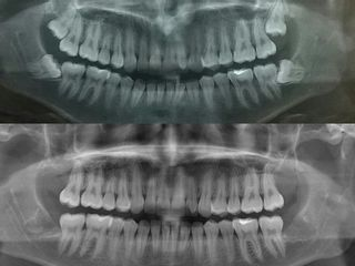 Exodoncia de cordales /terceros molares