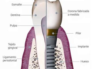 DIENTE E IMPLANTE DENTAL