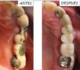 Prótesis dental - Dra. Gabriela Isabel González Víquez