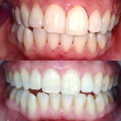 Limpieza dental - Dra. Gabriela Isabel González Víquez