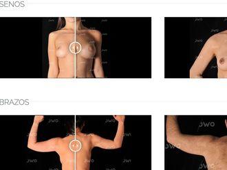 Mamoplastia de aumento-580468