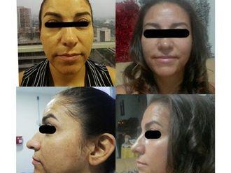 Rejuvenecimiento facial - 645065