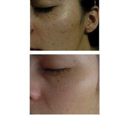 Rejuvenecimiento facial y eliminación de lunar con láser