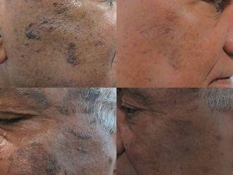 Manchas en la piel-713562