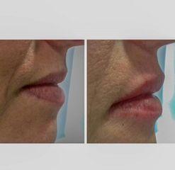 Perfilamiento de labios - Kairos Salud Integral