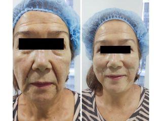 Rejuvenecimiento facial - Kairos Salud Integral